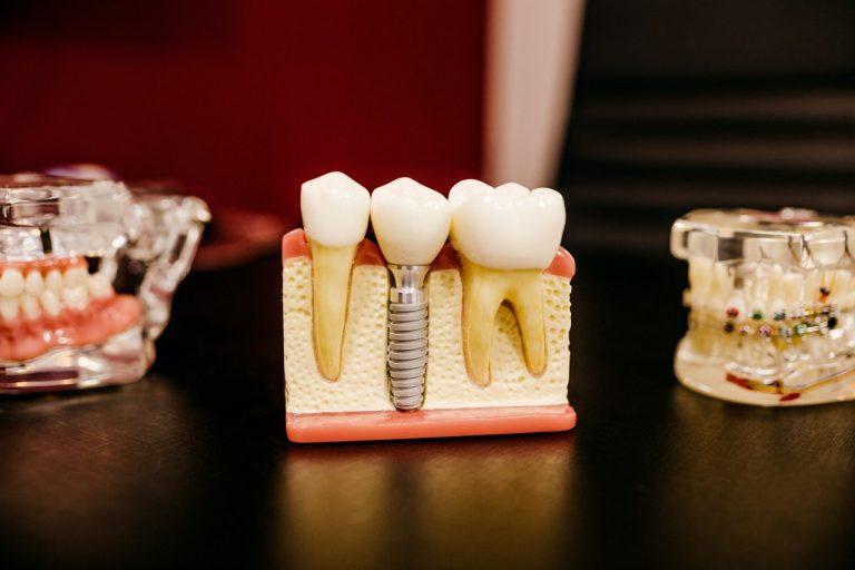 Endodoncja, czyli leczenie kanałowe – kiedy jest konieczne?