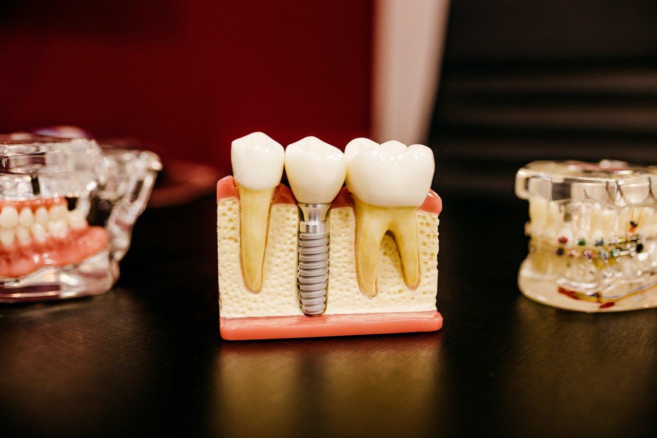 Leczenie kanalowe wskazania do endodoncji